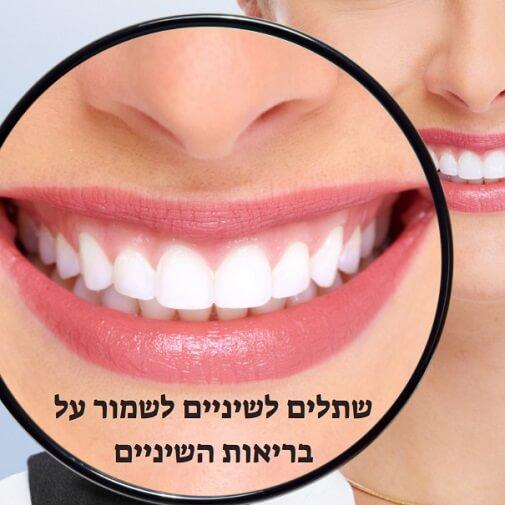 שתלים לשיניים לשמור על בריאות השיניים